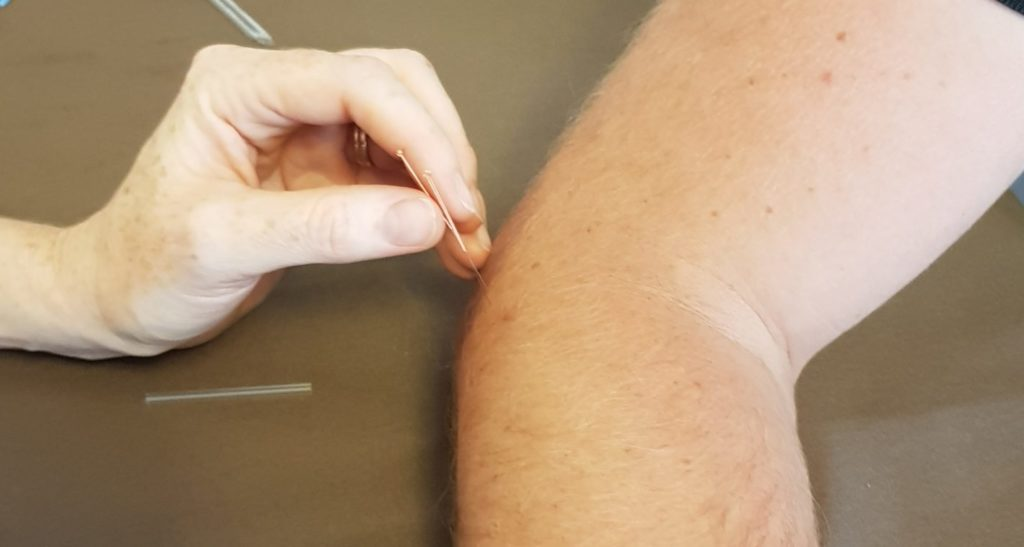 Your Home Physio Dry Needling